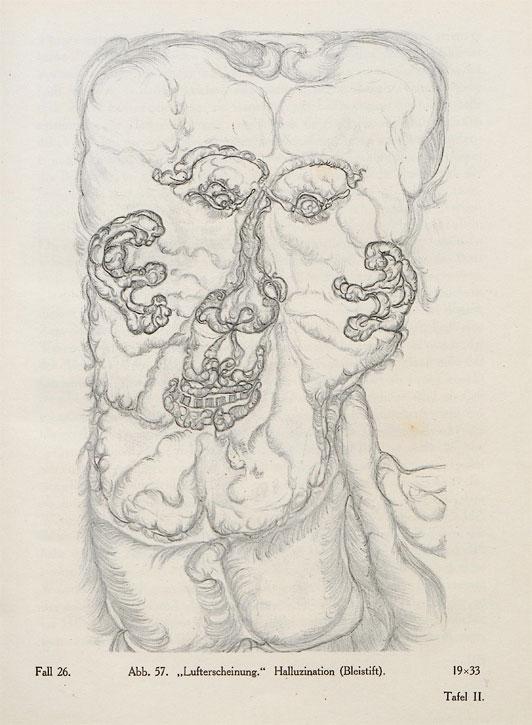 Case 26, fig. 57, 'Air apparition, hallucination'