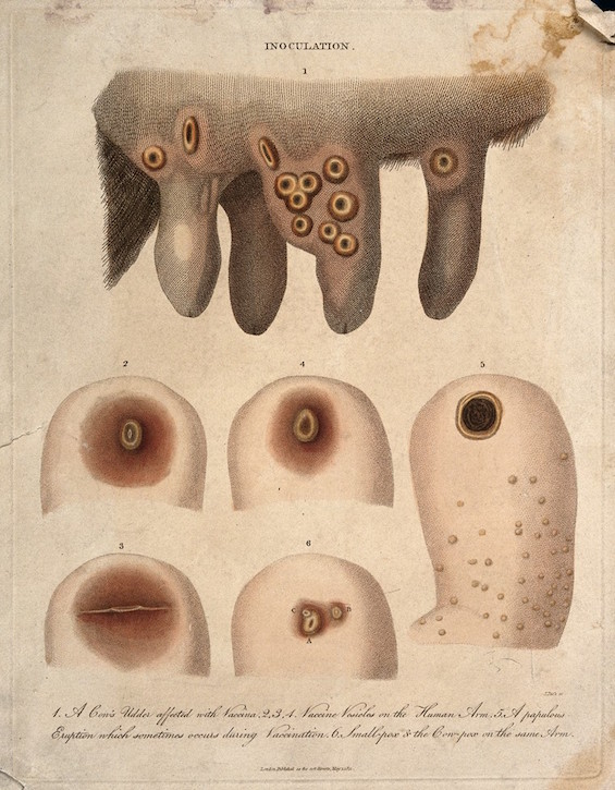 Cow's udder with vaccinia pustules and human arms with both smallpox and cowpox pustules
