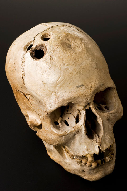 This skull shows four separate holes made by the ancient surgical process of trephination. They had clearly begun to heal, which suggests that although highly dangerous, the procedure was by no means fatal.