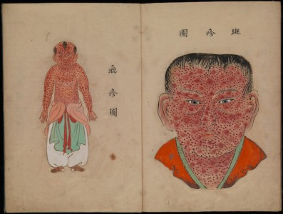 Illustration from 'Toshin seiyo' ('The essentials of smallpox')