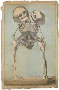 The Skeleton of Conjoined Twins Joined at the Thorax