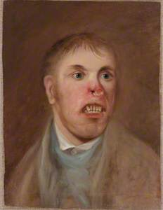 A Young Man, J. Kay, Afflicted with a Rodent Disease which Has Eaten Away Part of His Face