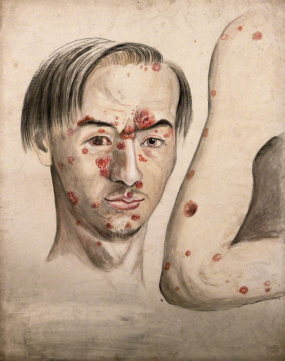 Head of a Man with a Severe Disease Affecting His Face; and a Section of Diseased Arm