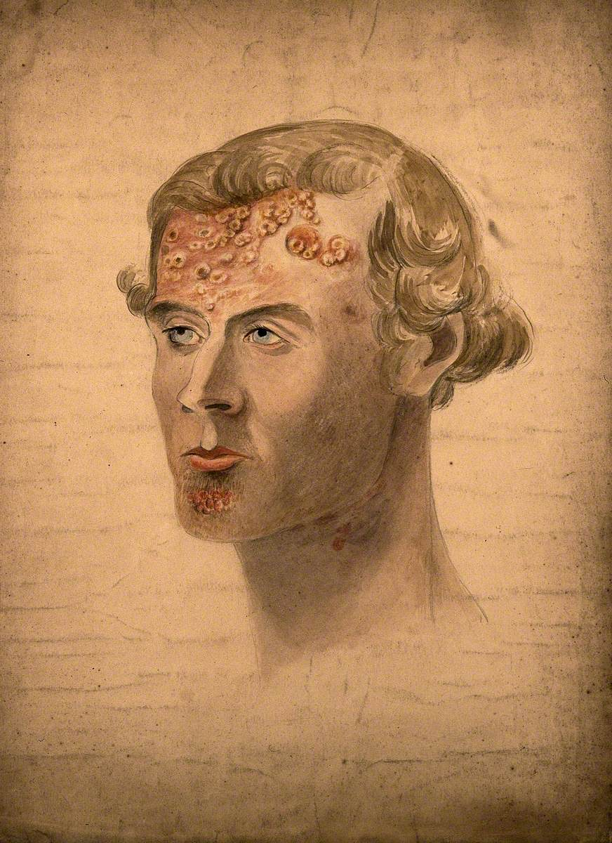 Head of a Man with a Severe Disease Affecting His Face