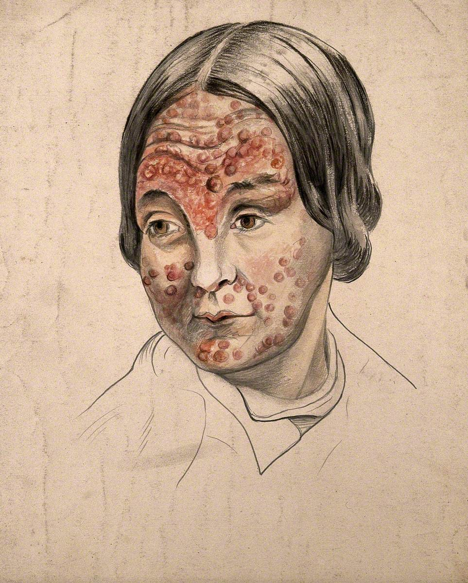 Head of a Woman with a Severe Disease Affecting Her Face