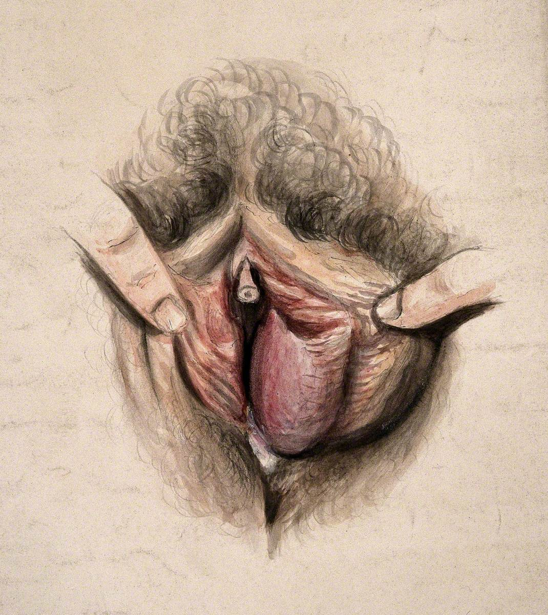 Female Genitalia Held Open by Two Fingers to Show an Area of Diseased Tissue