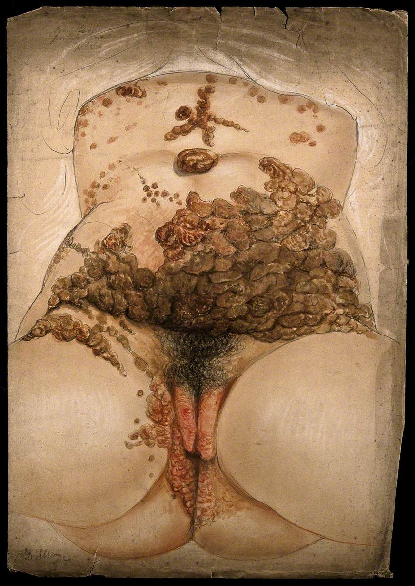 Female Genitalia Showing Severely Diseased Tissue Caused by Syphilis: Extensive Sores and Abcesses Are Seen Extending up the Abdomen and Torso