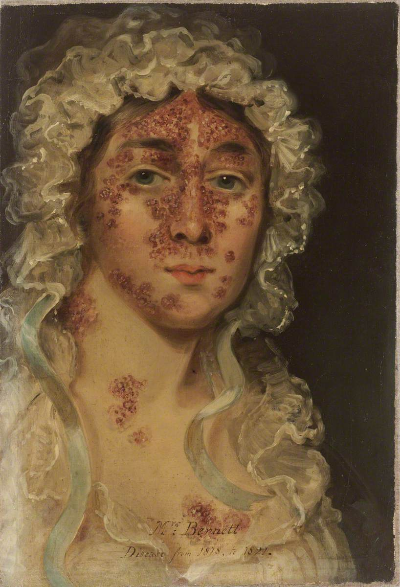 Mrs Bennett, Afflicted with a Skin Disease