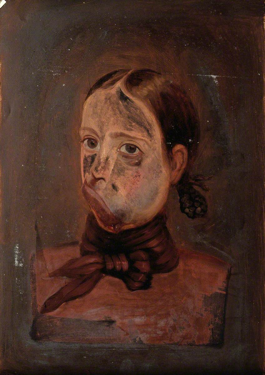 A Young Girl with a Deformed Mouth