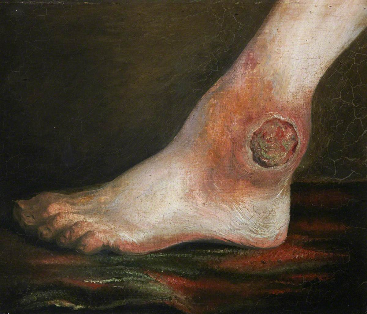 The Wounded following the Battle of Corunna: Gunshot Wound of Ankle Joint