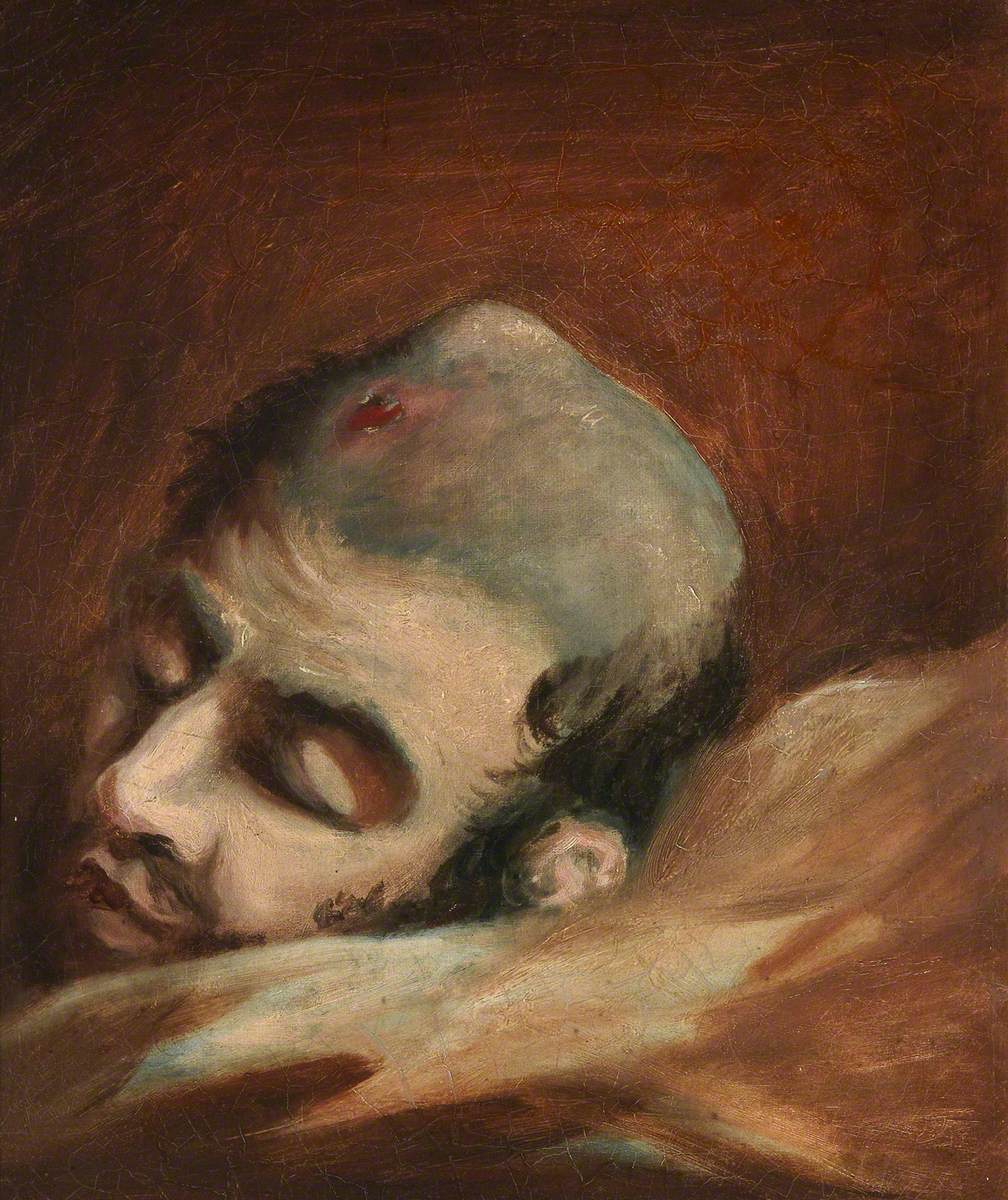 The Wounded following the Battle of Corunna: Bullet Wound of Skull
