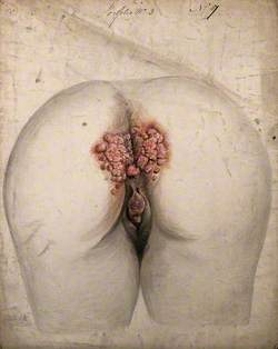 The Diseased Tissue around the Anus and Genitals of a Woman, as Seen from Behind