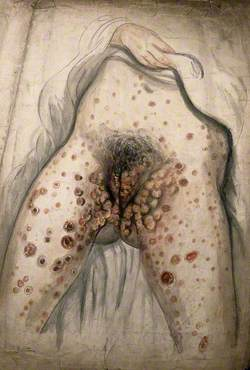 The Lower Half of a Woman (Seen from the Waist Down with Her Hand Lifting Up Her Garment) with Her Legs Apart to Show Severely Diseased Genitals and Sores All over the Exposed Parts of Her Body