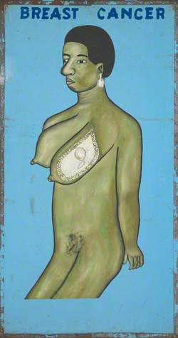 Disease and Organs Treated by a Vodoo Practitioner in Benin: Breast Cancer