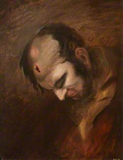 The Wounded following the Battle of Corunna: Musket Ball Wound of Head