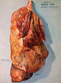 A Lobe of a Cow's Lung: Advanced Tuberculosis