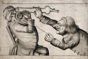 A Tooth-Drawer Frightening His Patient with a Hot Coal Causing Him to Pull Away Violently and Extract a Tooth