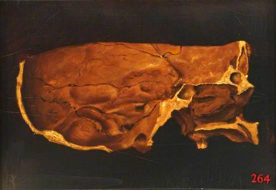 Skull, Section
