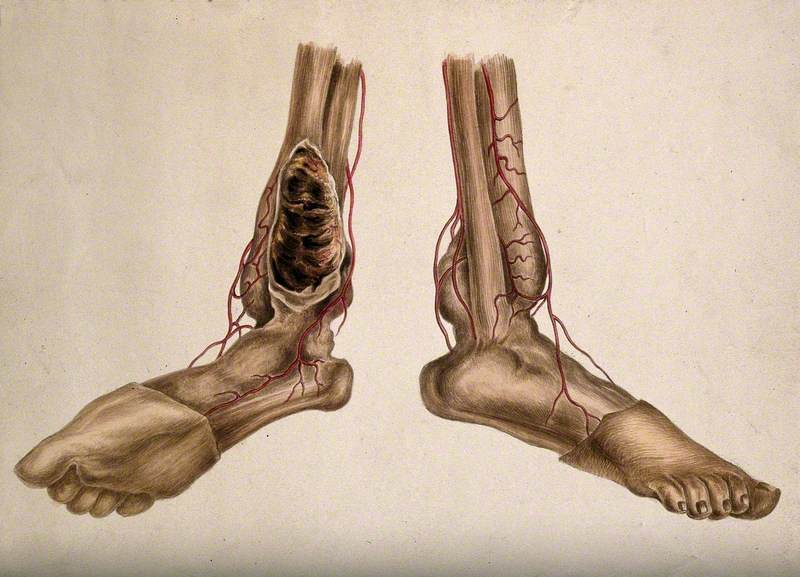 A Pair of Dissected Feet