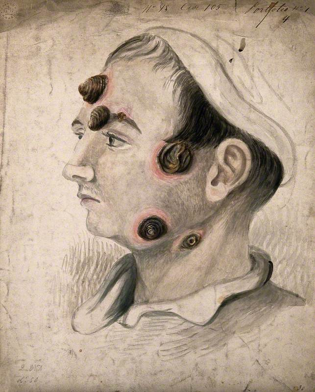 Head of a Man with a Severe Disease Affecting His Face and Neck