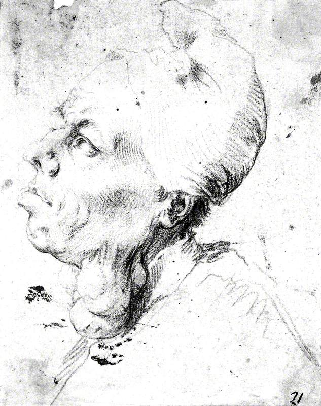 A Man with Goitre