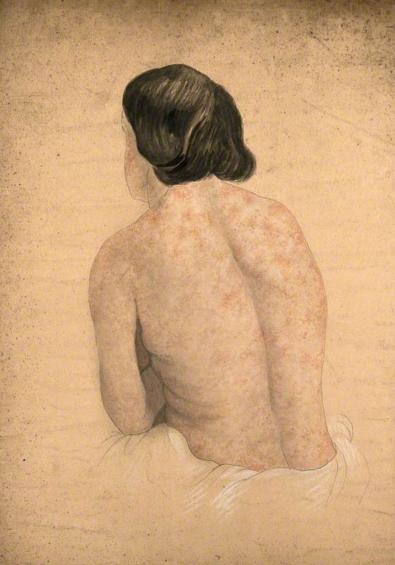 Back of a Woman Suffering from Skin Covered in a Rash Caused by Syphilis
