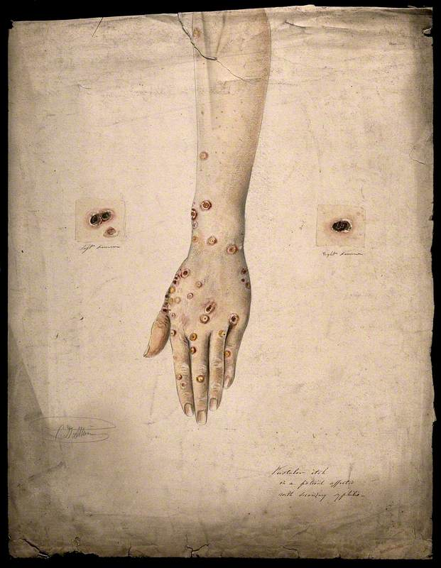 Sores and Pustules on the Hand and Arms of a Woman Suffering from Secondary Syphilis