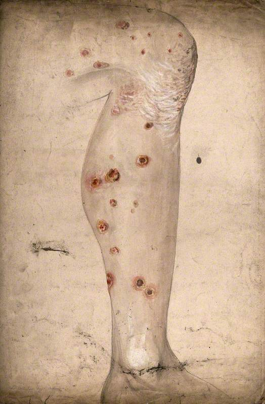 Diseased Skin and Sores on the Leg of a Man Suffering from Syphilis