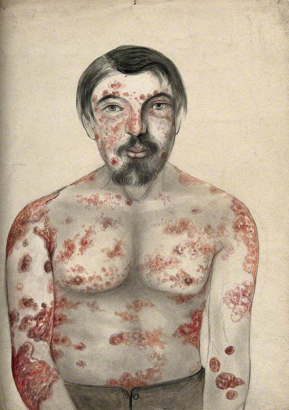 Diseased Tissue on the Face, Shoulders, Arms and Torso of a Man Suffering from Psoriasis and Possibly Syphilis