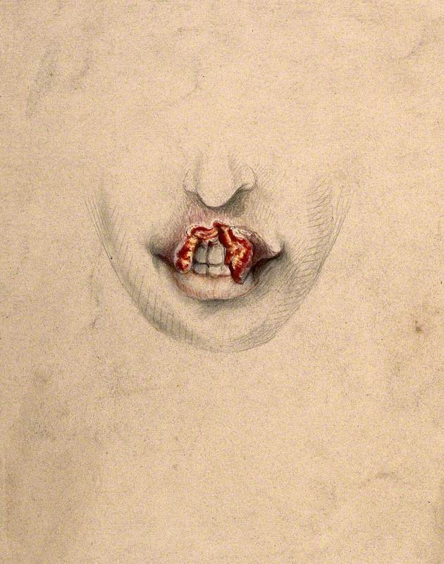 Severely Diseased Tissue on the Upper Lip of a Woman Suffering from Tertiary Syphilis