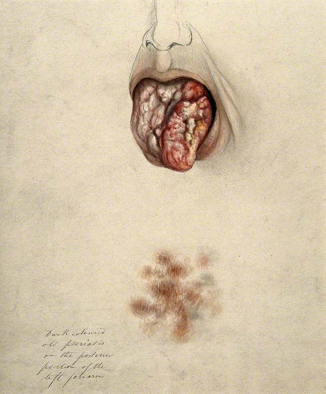 Diseased Tissue on the Tongue of a Man Suffering from Syphilis, with a Detail below Showing an Area of Psoriasis on the Man's Arm