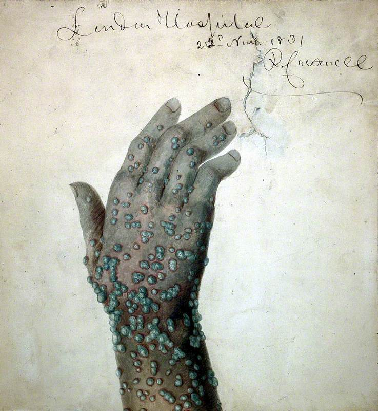 Rash of Pustules on the Hand of a Patient, Probably Suffering from Smallpox