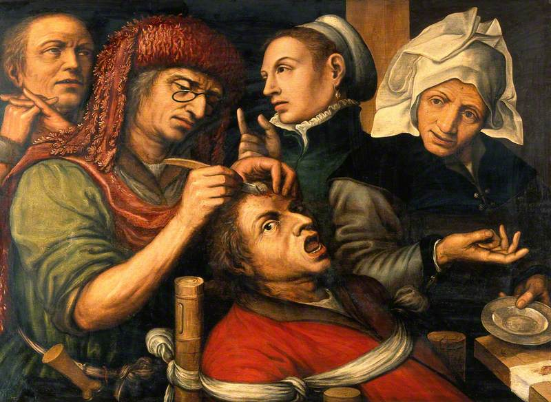 An Operation for Stone in the Head