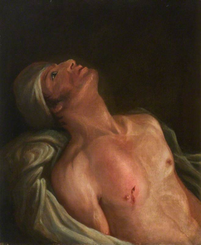 The Wounded following the Battle of Corunna: Gunshot Wound of Scapula