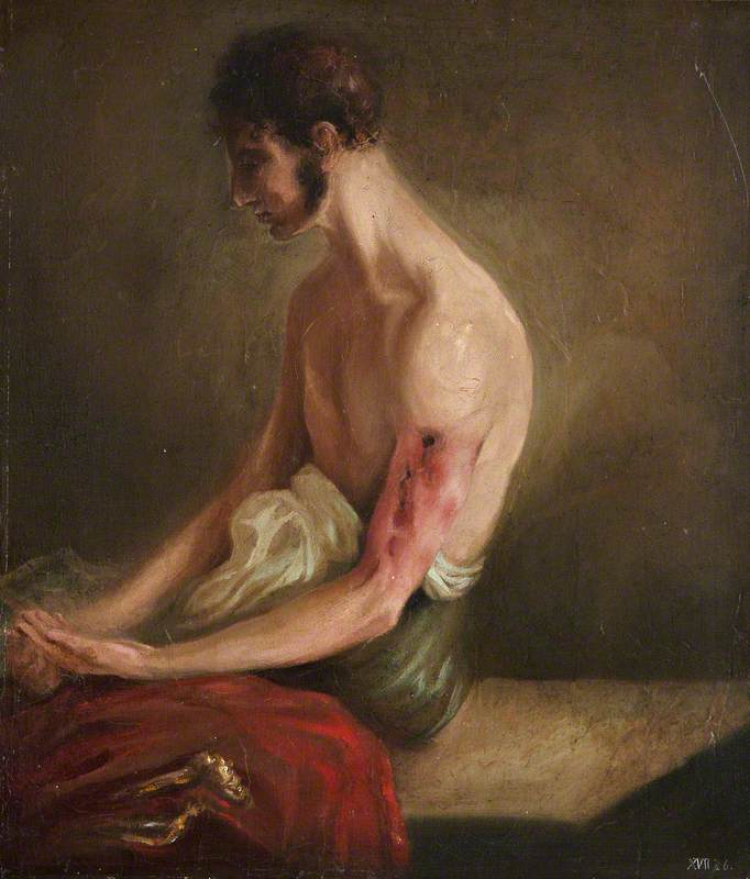 The Wounded following the Battle of Corunna: Gunshot Fracture of Shaft of Humerus